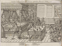 Death of Henry II in Paris, 1559. In a tournament Henry received a fata; blow to his eye from a lance, but he did not die immediately. The woodcut shows him on his deathbed with his family. In the center of the room we see his physicians, Ambroise Paré and Andreas Vesalius. As famous as these physicians were, they could do little except preside over the king